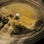Фрагмент поврежденного рентгеновского снимка с аудиозаписью.